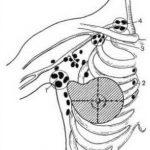 При раке молочной железы нет  необходимости в удалении всех лимфатических узлов