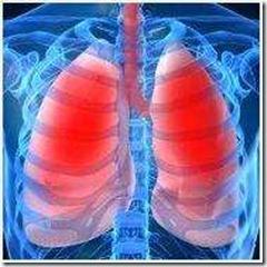 zupinimo-tuberkuloz_1