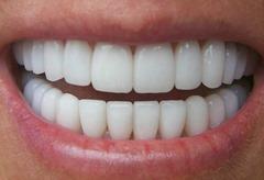реставрация зуба видео
