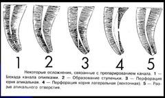 презентация эндодонтической обработки каналов зубов