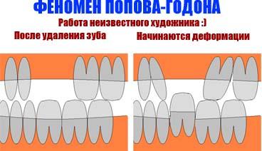 феномен Попова Годона
