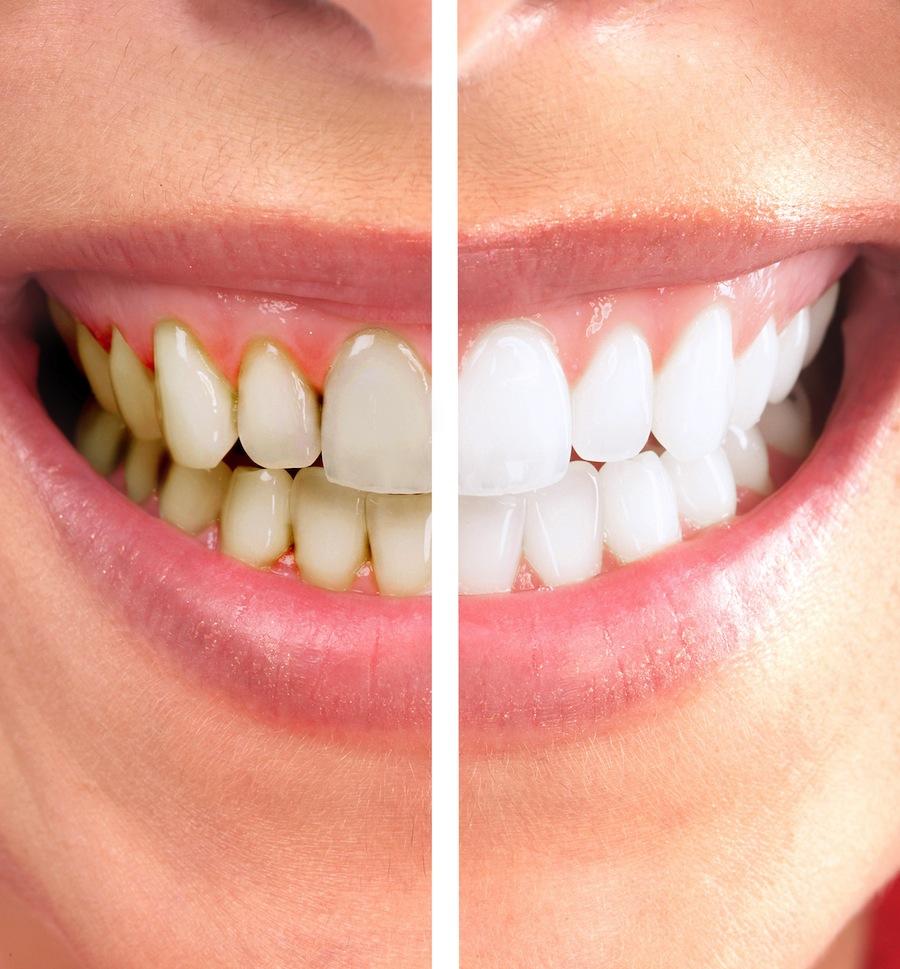 изменение цвета зуба