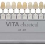 Изменение цвета зуба, или дисколорит