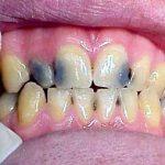 Кариес зубов- это защита от рака