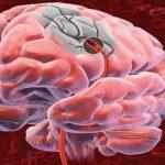 Польза витамина В в профилактике инсульта