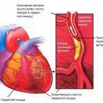 """""""Бессимптомный"""" инфаркт миокарда- частое послеоперационное осложнение"""