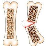 Остеопороз костей у женщин- серьезная угроза их независимости