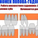 Имплантация зубов. Понятие, показания и противопоказания